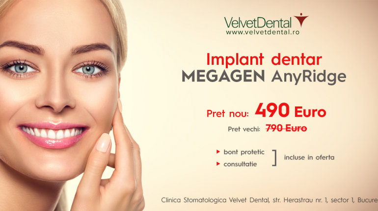 Implant Dentar Megagen - AnyRidge